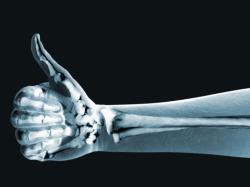 Нанотехнології допоможуть виявити переломи кісток
